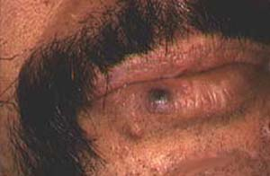 intralesional corticosteroid injections