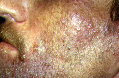 shingles virus images
