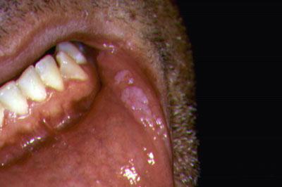 féreg egy tinédzser papillomavírus mst kezelés